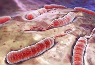 L'étude d'une victime du choléra permet une avancée importante dans la compréhension de l'origine de la maladie